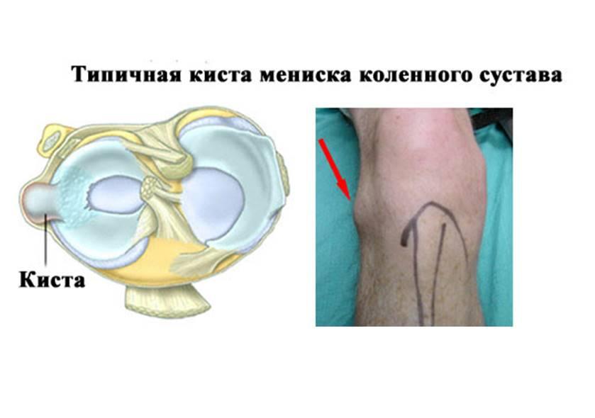 латеральный наружный мениск коленного сустава