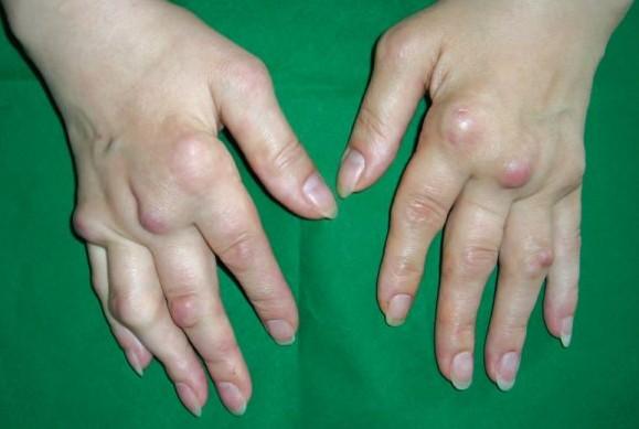 сустав ногтевой фаланги