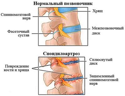 Народные средства при беременности при остеохондрозе