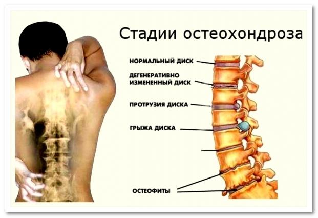 Гимнастика для остеохондроза шейно грудного отдела