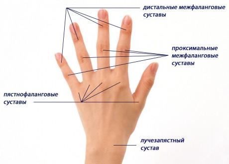 клиника лечения суставов в киеве
