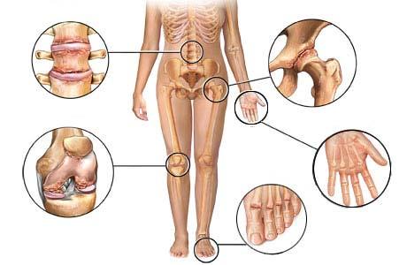 Потологии мышц суставов остеопороз коленного сустава симптомы и лечение