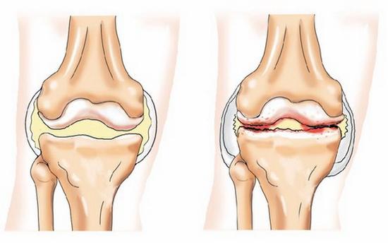 Деформирующий остеоартроз (код по мкб 10) - причины и лечение