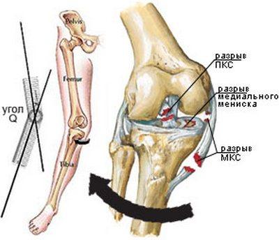 Повреждение связок коленного сустава методы лечения сроки восстановления