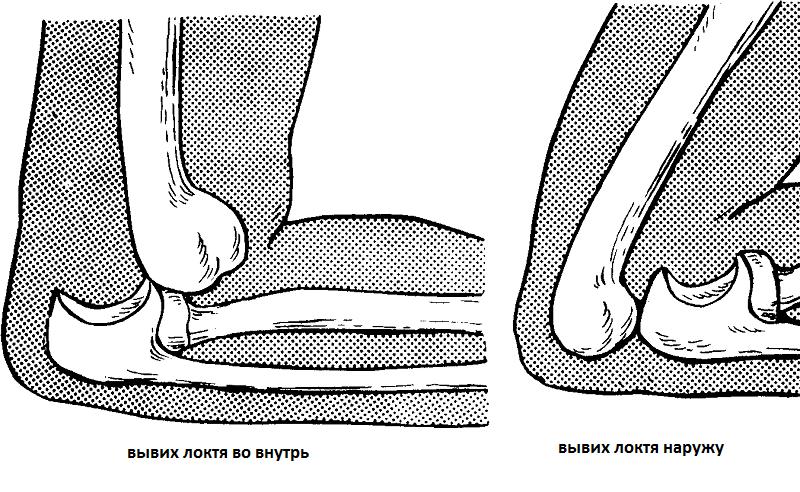 Щелкает в локтевом суставе упражнения для челюстного сустава