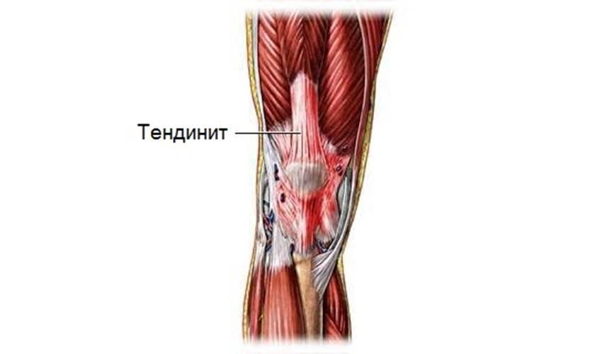 Боль под коленом спереди: после бега и при ходьбе
