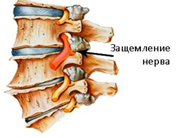 Ущемление нерва в грудном отделе позвоночника, невралгия в шейном ...