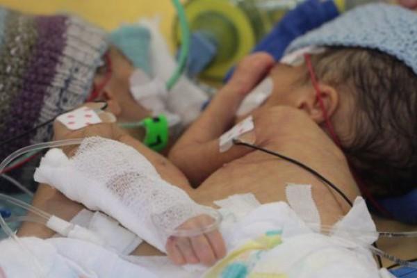 ВШвейцарии успешно разделили новорожденных сиамских близнецов
