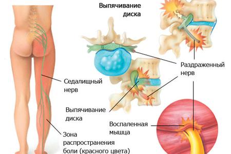 Радикулярный синдром поясничного отдела позвоночника