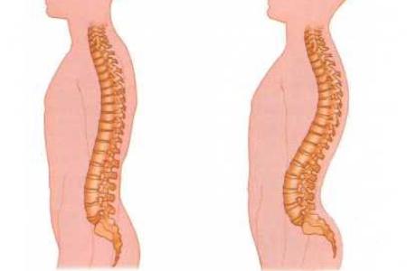 Болит спина в первый месяц беременности