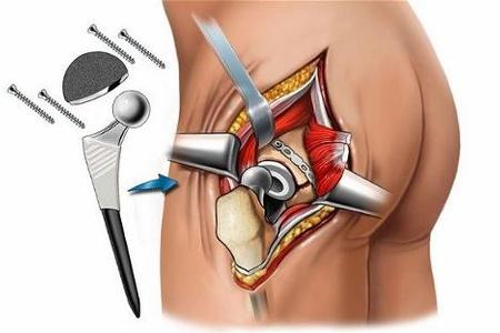 Асептический некроз головки тазобедренного сустава