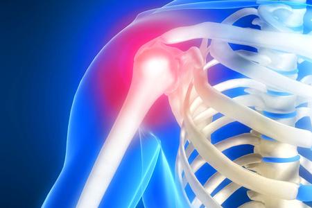 МРТ плечевого пояса