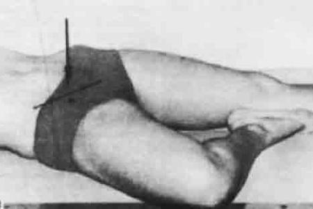 Укладка при рентгене тазобедренного сустава