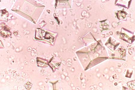 Ураты под микроскопом