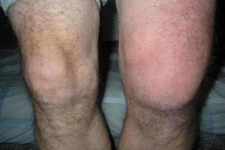 Опухло колено