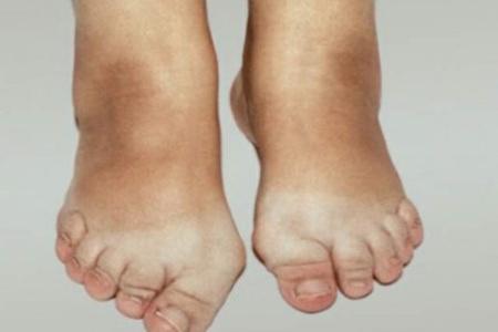 болят суставы пальцев ног лечение народными средствами