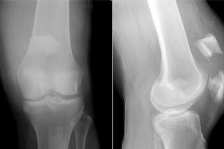 Перелом рентген снимок