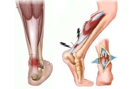нога, голеностоп