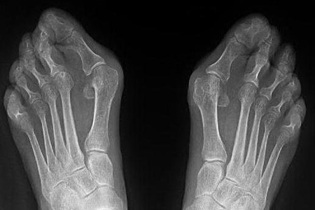 рентген суставов ног