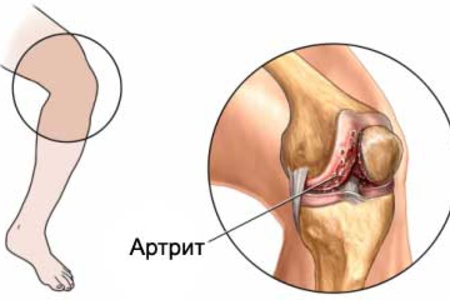 Артрит у ребенка симптомы 89