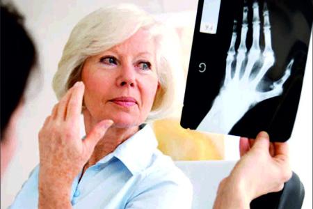 женщина и рентген-снимок