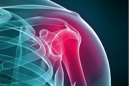 Изображение - Код артрит плечевого сустава artrit_plechevogo_sustava_1