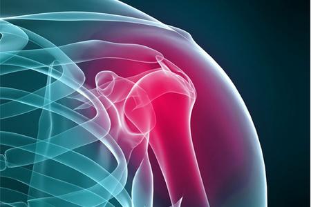 Артрит правого плечевого сустава фиксатор коленного сустава разъемный