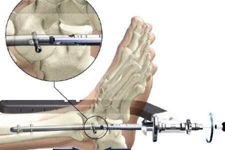 Как правильно делать ультразвук коленного сустава