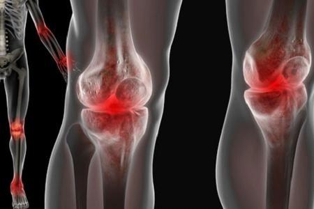 Реактивный артрит симптомы