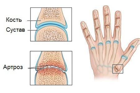 Ноющая боль в суставах рук и ног