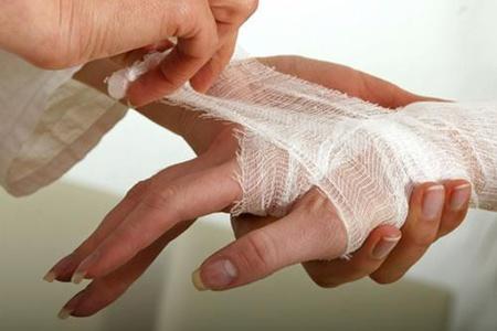 Наложения бинта на руку