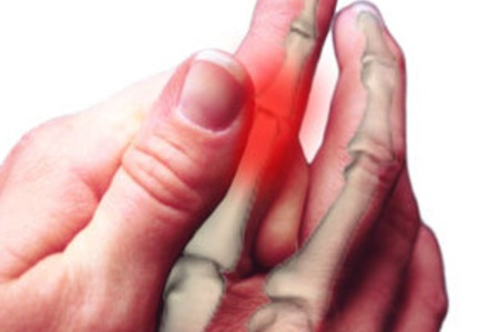 Боль в пальцах