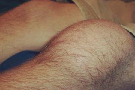 Гнойный артрит колена