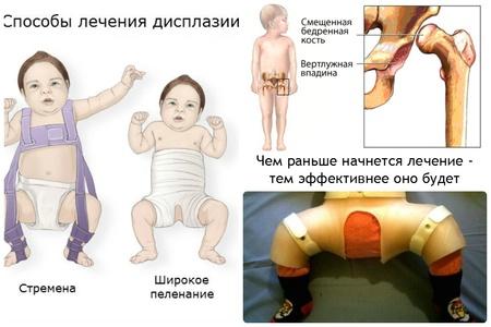Вывих тазобедренного сустава у детей лечение