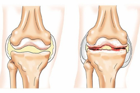 Опухает колено в чем причина