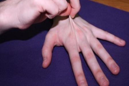 Дисплазия ткани