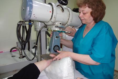 Рентгенотерапия шпоры