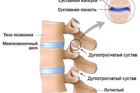 Артроз дугоотросчатых суставов