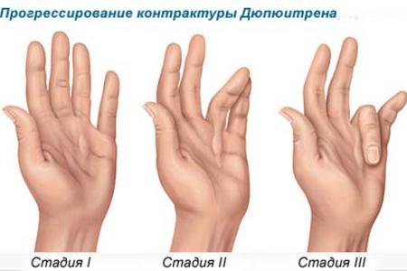 Контрактура пальцев рук лечение