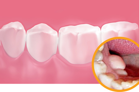 Экзостозы в полости рта
