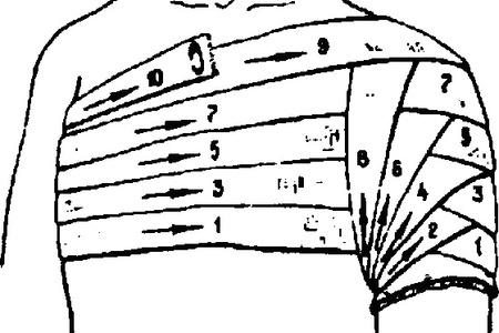 повязка на плечевой сустав