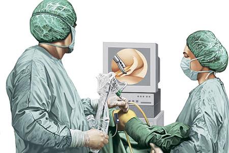 артроскопия, врачи