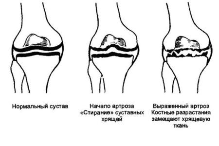 Разрушение сустава