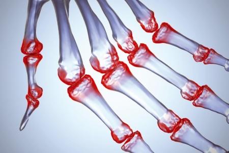 Инфекционный реактивный артрит