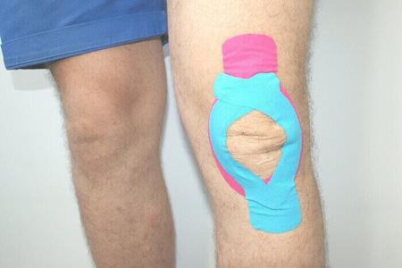 Тейпирование колена