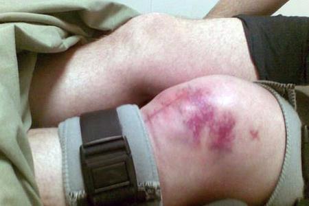 Перелом колена