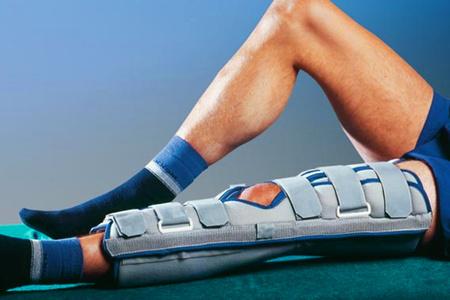 Иммобилизация колена