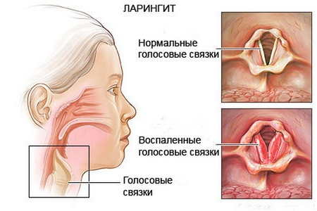 строение голосовых связок