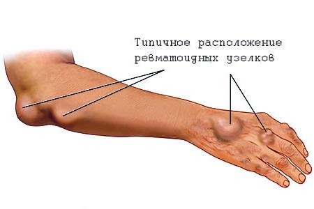 Народные средства для лечение тройничного нерва