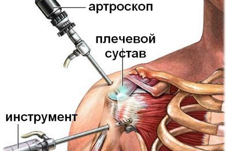Изображение - Артрит плечевого сустава мкб 10 lechenie_plecgevogo_sustava